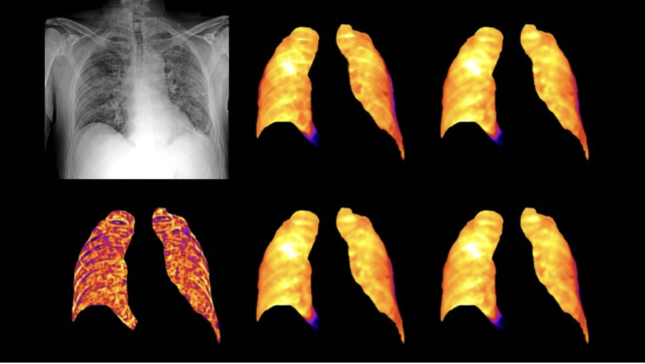 radiografia aws